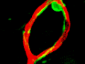 Pericyte and Capillary Imaging